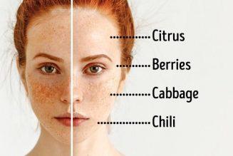 Sắc tố da trên gương mặt
