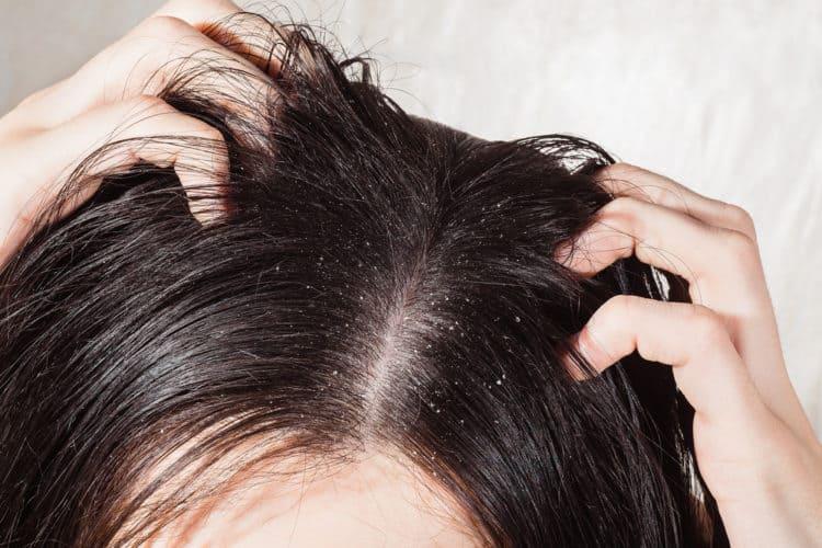 Da đầu có nhiều gàu